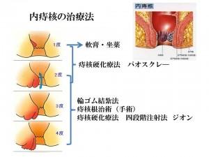 内痔核の治療