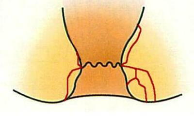 肛門周囲膿瘍が慢性化するとあな痔になります