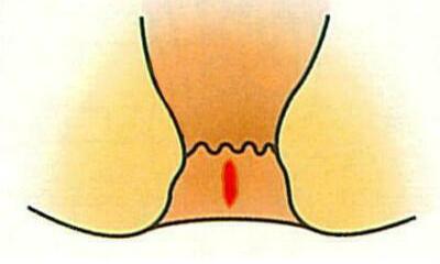 肛門まわりの皮膚が切れた状態です